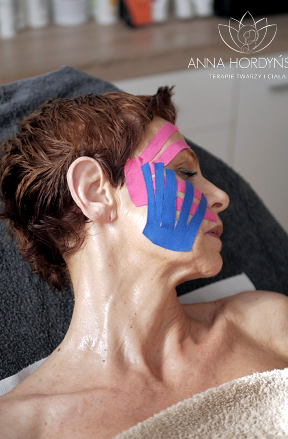 Kinesiotaping estetyczny wykonany w Gabinecie Anna Hordyńska Terapie Twarzy i Ciała