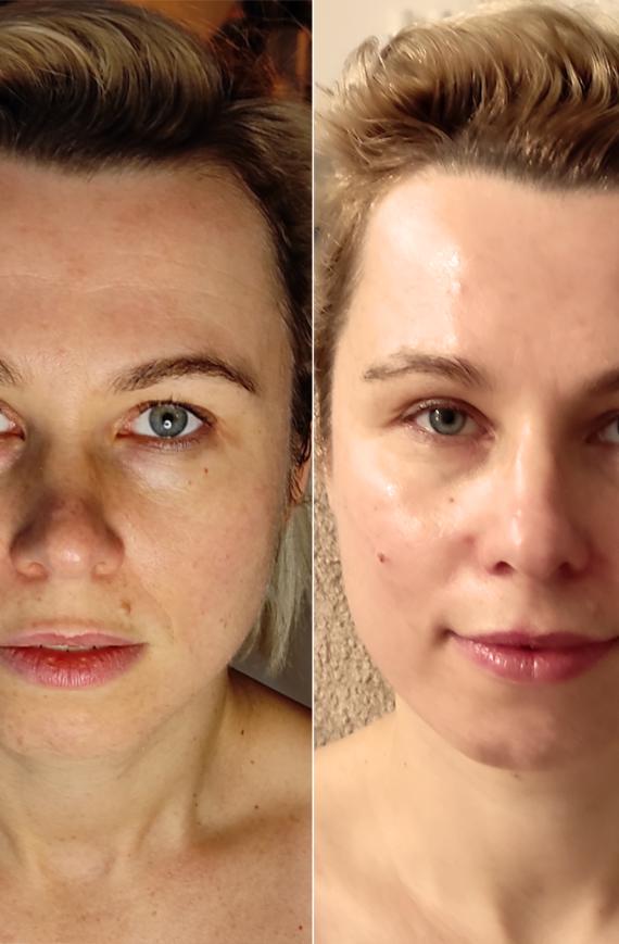 facemodeling efekty zabiegu w gabinecie Anna Hordyńska