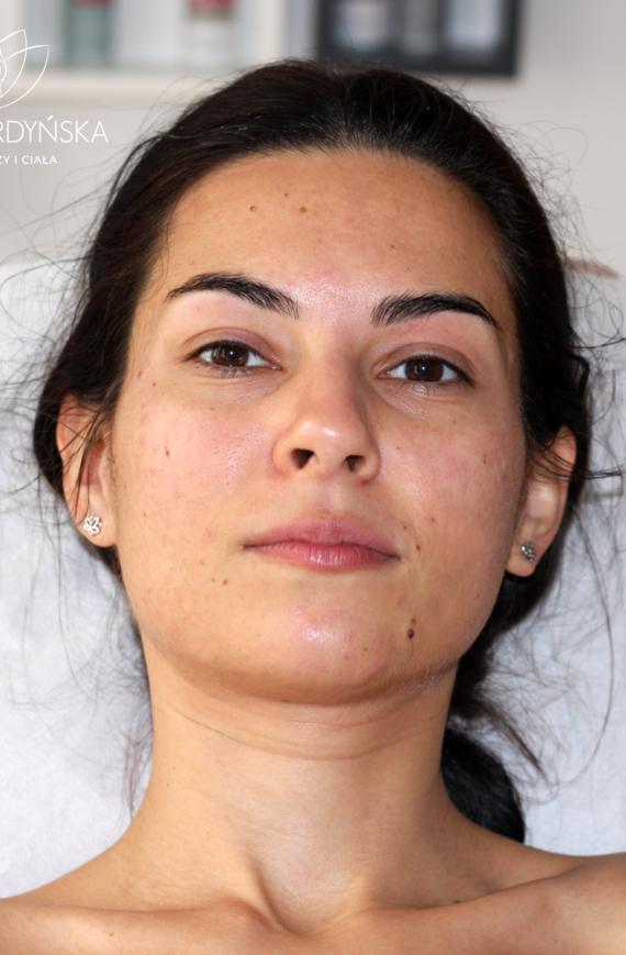Manualne oczyszczanie twarzy - efekt zaraz po zabiegu